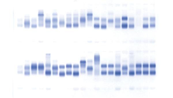 Peroxidase and alkaline phosphatase activity in serum. (a